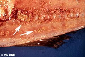 Myofibrogranuloma